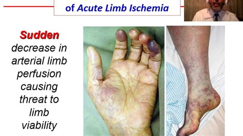 acute ischemia overview youtube