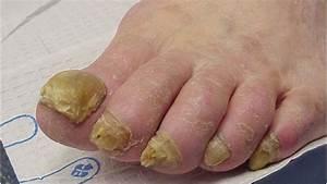 Грибок ногтей на ногах как лечить аммиаком