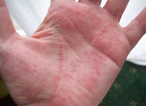 red itchy palms - pictures, photos