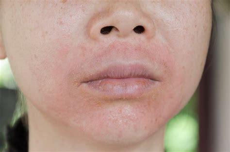 health check  makeup bad   skin