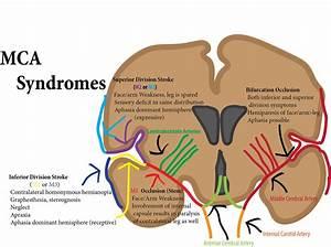 Photos  Middle Cerebral Artery Syndrome