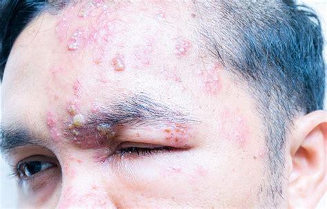 Shingles Treatment in NYC, Herpes Zoster, Shingles Rash