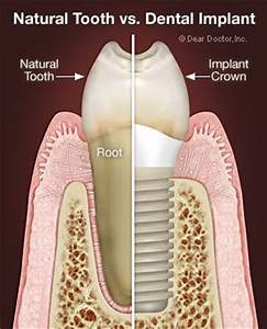 14 best images about Oral Surgery/Wisdom Teeth Removal on ...