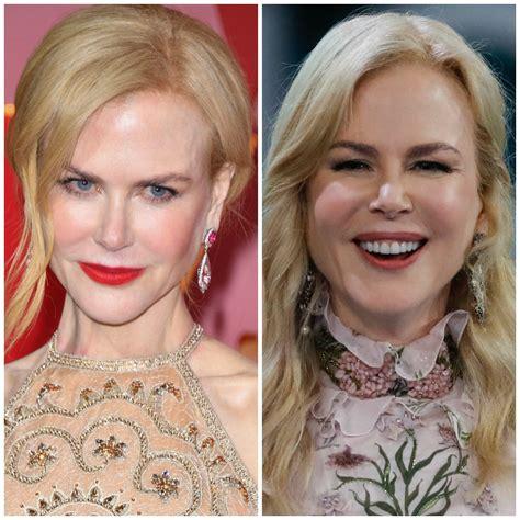 Nicole Kidman Sparks Plastic Surgery Rumors With