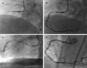 Case 3   A  Rca Baseline Angiography   B  Rca Angiography