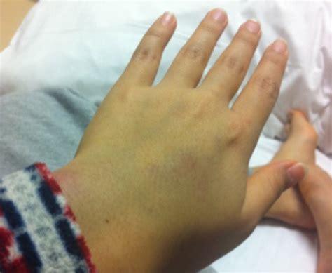 白血病 初期 症状 子供