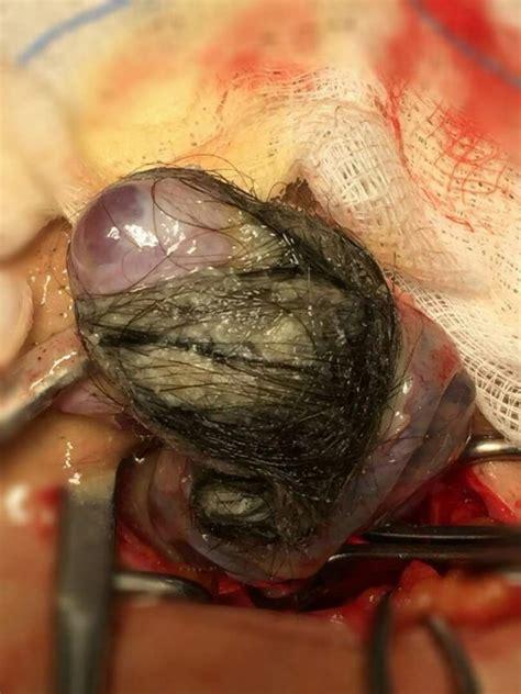Wanita Hamil Dalam Quran Dr Hamid Arshat Kongsi 10 Amalan Pemakanan Lepas Bedah Buang Cyst Untuk Boleh Hamil Pa Ma