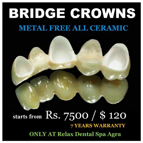 dental crowns crown dental practice 100 images say
