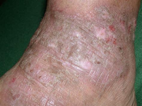 is dermatitis contagious