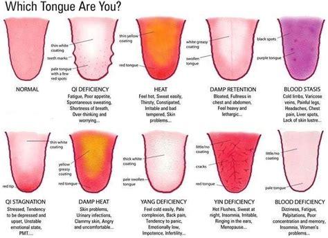 burning tongue syndrome images  pinterest