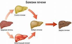 Стеатоз печени лекарства