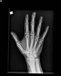 Best Photos of X-rays Of Broken Bones - Broken Collar Bone ...