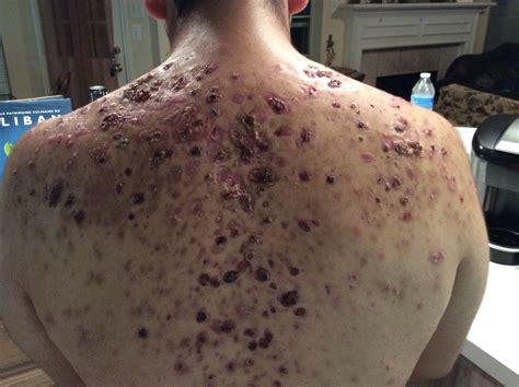 Severe back acne