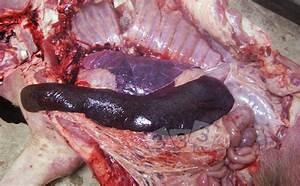 Enlarged  Congestive Spleen