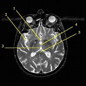 Neural Structure Quiz