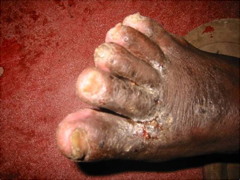 Fungal Skin Infections Face Skin Image