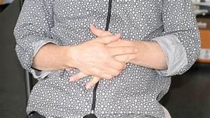 Chronisch entzündliche Darmerkrankungen (CED)