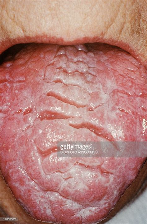 Candida Yeast Infection On Tongue