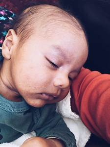 10 Common Newborn Baby Rashes You Need to Know About!