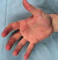 neuromuscular disorders bethlem