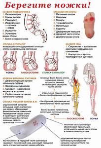 Что делать когда болят суставы рук и пальцев