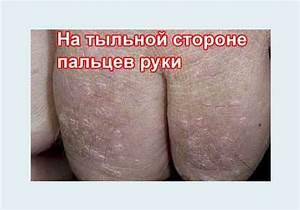 Плоские бородавки на кистях рук лечение