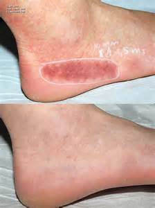 Red Spots On Foot
