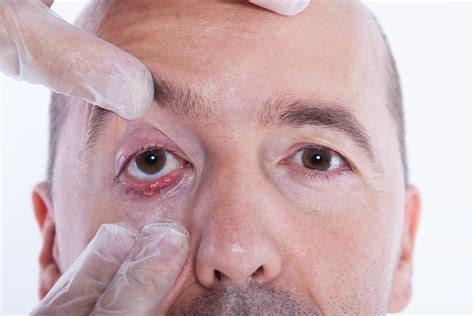 dermatochalasis baggy eyes   surgical options