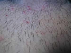 Папилломы у мужчин на лобке лечение