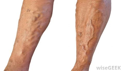 What Are The Symptoms Of Varicose Veins With Picture