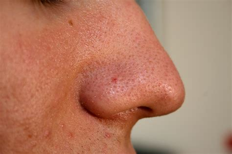 Medical Pictures Info Blackheads