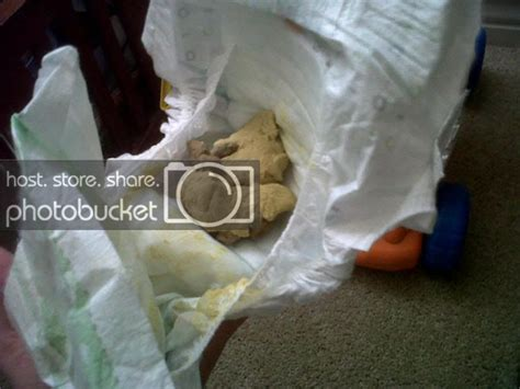 pale yellow stool in adults pale stool gross poopy picture babycenter