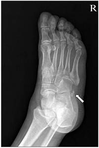 Oblique View Of The Foot Shows Multipartite Os Peroneum At The Level Of
