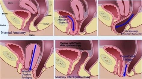 Pelvic Floor Stimulator For Prolapse by What Is Pelvic Organ Prolapse Coreset Fitness