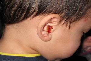 How To Treat Ear Infection Using Home Remedies