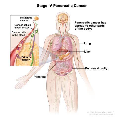 Pancreatic Cancer Treatment Pdqpatient Version