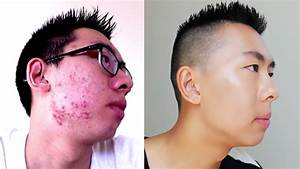 HOW TO COVER UP ACNE   MENS MAKEUP - YouTube