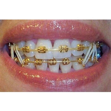 braces colors that make teeth look whiter 44 best brace images on brace smile