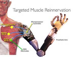 Targeted Muscle Reinnervation TMR