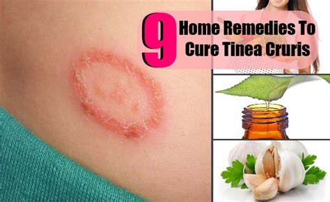 top home remedies  cure tinea cruris lady care health