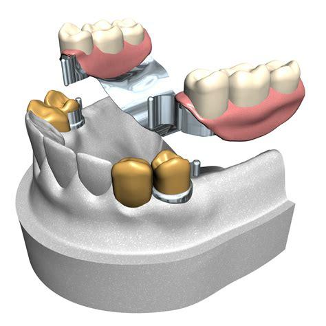 zahnersatz bruecke prothese oder zahnimplantat