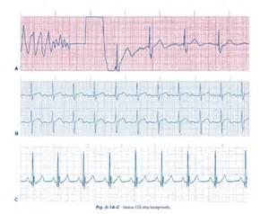 Easy ECG Interpretation For Dummies