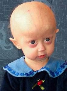 Progerie  U2013 Wikipedie