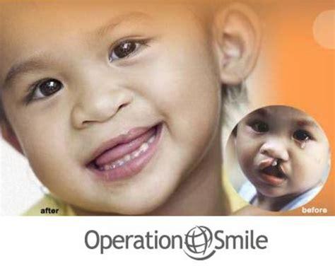 Cleft Lip Charity We Work Sdinowitz Operation Smile