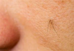 Ingrown Hairs-what are they? & How to treat Excellent