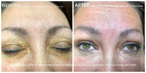 Cholesterol Deposits Removal Before & After | Beauty-Full Spa