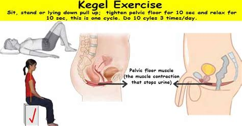 pelvic floor dysfunction constipation exercises kegel exercise gds