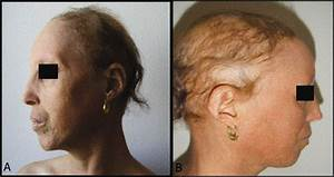 werner syndrome - pictures, photos