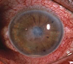 Microsporidial Stromal Keratitis