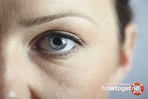 Маски против морщин под глазами в домашних условиях отзывы